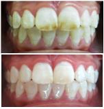 Fotos de Odi Odontología Infantil